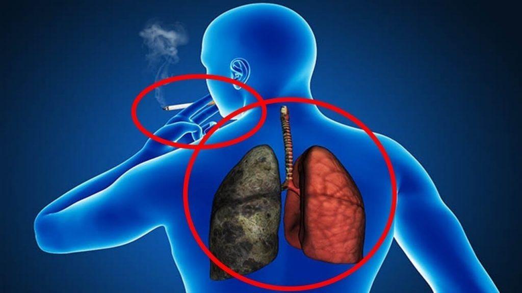 pulmão de fumante