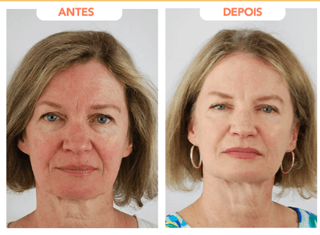 revitalize hialuronic depoimento 1